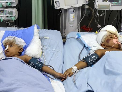 Cselekvés a Kiszolgáltatottakért Alapítvány – bangladesi sziámi ikerpár műtétje